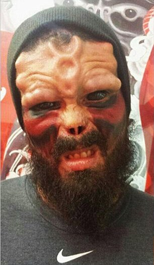 Comic Book Fan Has Nose Chopped Off to Look Like Villain Red Skull