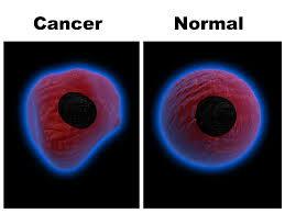 Cancer cell vs normal cell